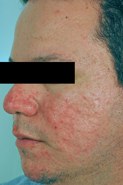 Celibre - Acne Laser Treatment | Before & After Pictures