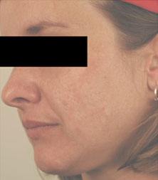 after acne scar treatment photo