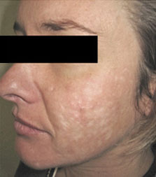 acne scars before photo