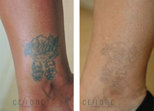 What will my laser tattoo removal cost for Can you give blood after getting a tattoo