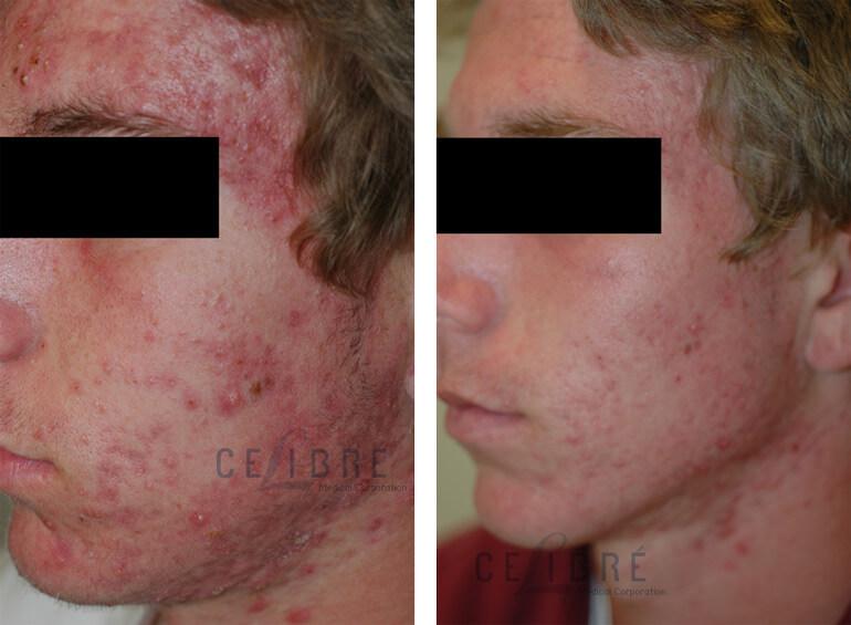 Aristocort Cream For Acne