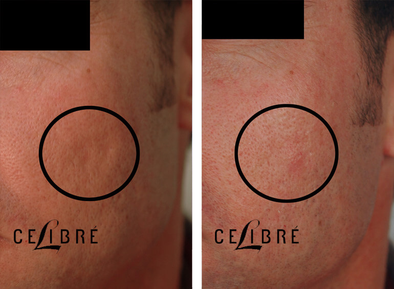 Acne Scar Removal Before and After Pictures 3