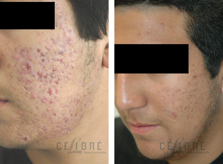 Red acne scars before and after laser treatment in Los Angeles.