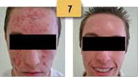 Acne Scar Laser Treatment Before and After Pictures Sm 7