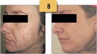 Laser Acne Scar Treatment Before and After Pictures Sm 8