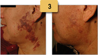 Vascular Birthmark Removal Before and After Pictures Sm 3