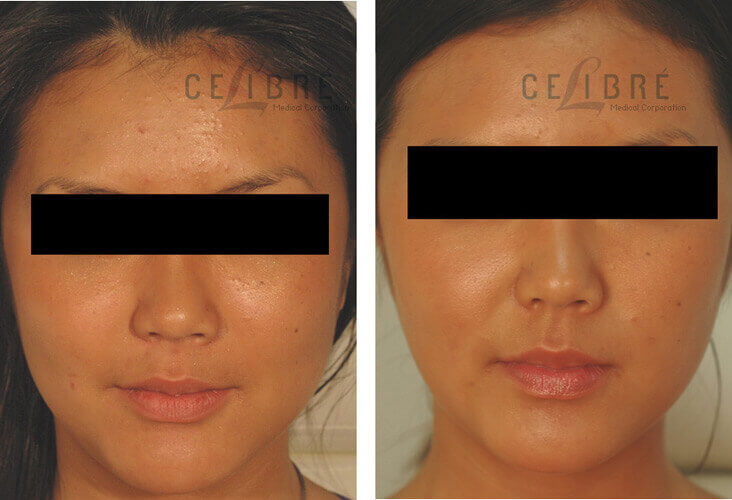 Botox Before and After Pictures 5