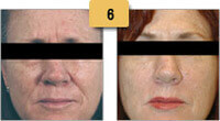 Botox Before and After Pictures Sm 6