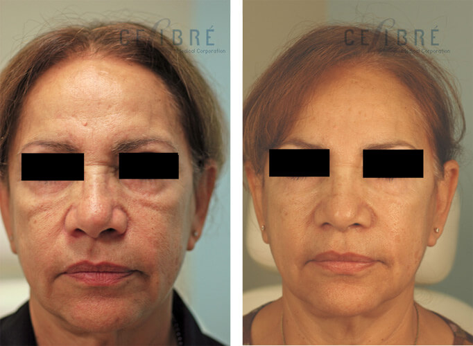 Juvederm Injections Before and After Pictures 1