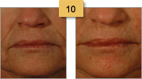 Juvederm Before and After Pictures Sm 10