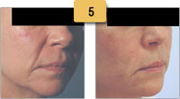 Juvederm Before and After Pictures Sm 5