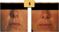 Juvederm Before and After Pictures Sm 6