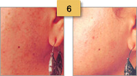 Laser Hair Removal Before and After Pictures Sm 6