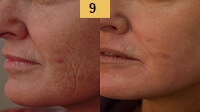 Laser Resurfacing Before and After Pictures Sm 1