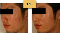 Laser Resurfacing Before and After Pictures Sm 3