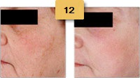 Laser Resurfacing Before and After Pictures Sm 4