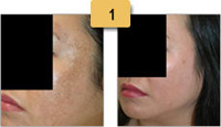 Melasma Before and After Pictures Sm 1
