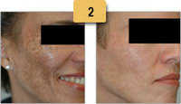 Melasma Before and After Pictures Sm 2