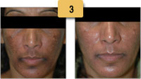Melasma Before and After Pictures Sm 3