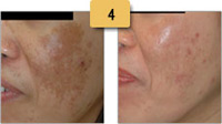 Melasma Before and After Pictures Sm 4