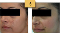 Melasma Before and After Pictures Sm 5