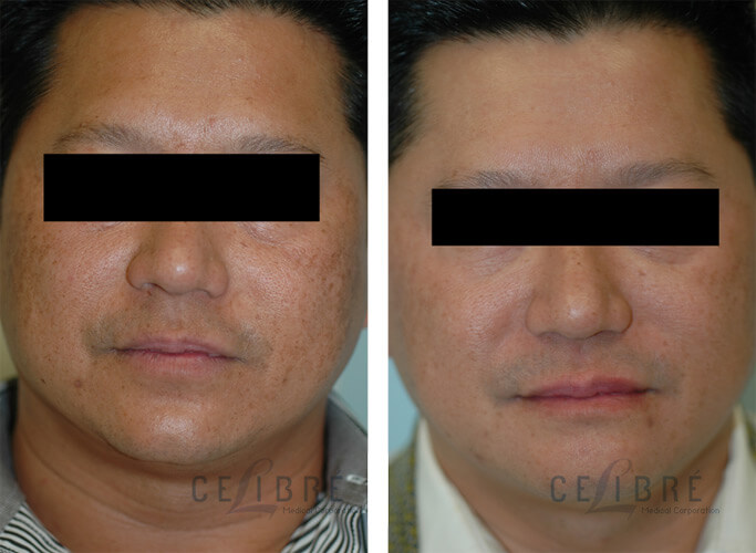 Melasma Before And After Pictures 6