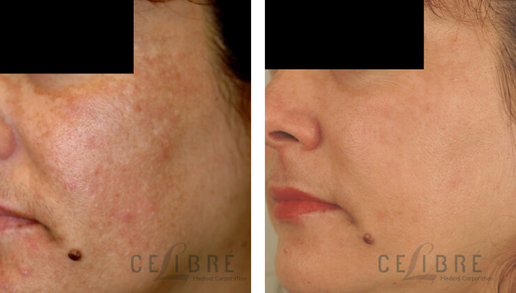 Melasma Before And After Pictures 8