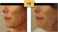 Perlane Injections Before and After Pictures Sm 10