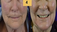 Profractional Laser Resurfacing Before and After Pictures Sm 4