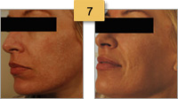 Profractional Laser Resurfacing Before and After Pictures Sm 7