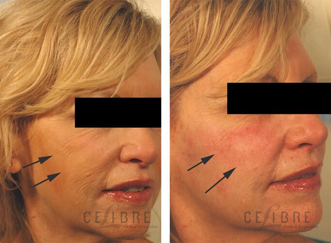 Acne Rosacea And Perioral Dermatitis Zipper