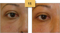 Restylane Injections Before and After Pictures Sm 11