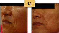 Restylane Injections Before and After Pictures Sm 12