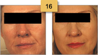 Restylane Injections Before and After Pictures Sm 16