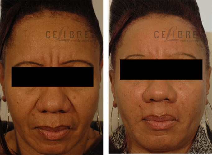 Restylane Injections Before and After Pictures 4