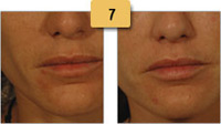 Restylane Injections Before and After Pictures Sm 7