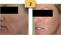 Rosacea treatment Before and After Pictures Sm 2