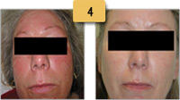 Rosacea treatment Before and After Pictures Sm 4