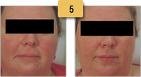 Rosacea treatment Before and After Pictures Sm 5