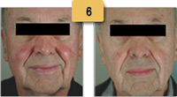 Rosacea treatment Before and After Pictures Sm 6