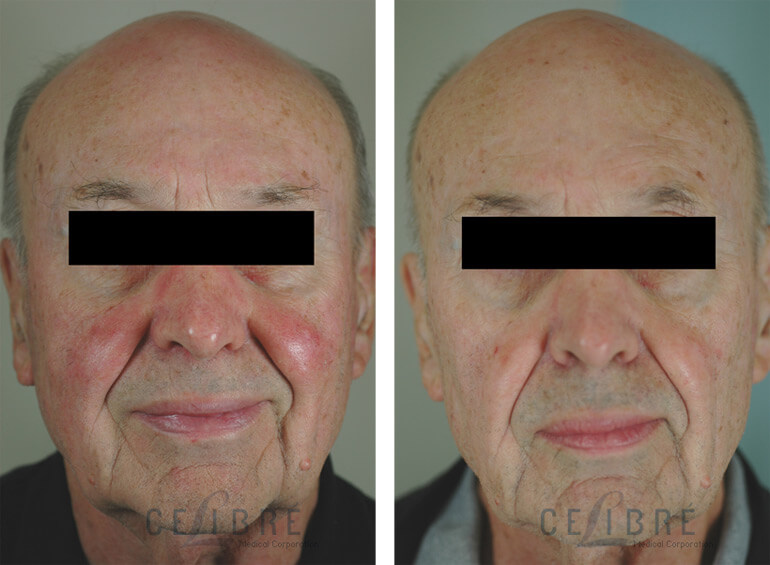 Rosacea Laser Treatment Before After Pictures 6