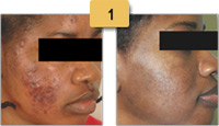 Scar Removal Before and After Pictures Sm 1