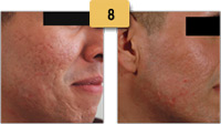 Scar Removal Before and After Pictures Sm 8