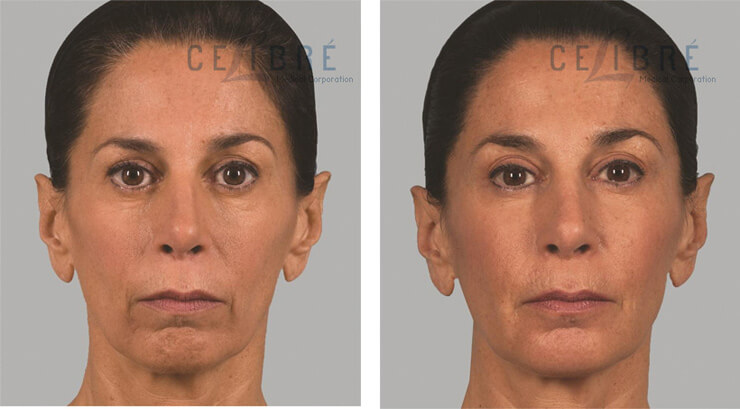Sculptra Injections Before And After Pictures 1