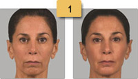 Sculptra Injections Before and After Pictures Sm 1