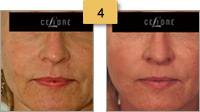 Sculptra Injections Before and After Pictures Sm 4