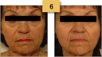 Sculptra Injections Before and After Pictures Sm 6