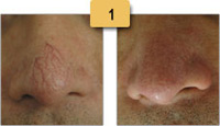 Spider Vein Removal Before and After Pictures Sm 1
