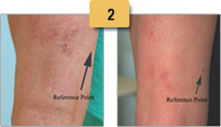 Spider Vein Removal Before and After Pictures Sm 2