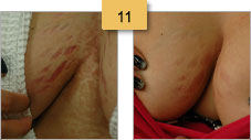 Stretch Mark Removal Before and After Pictures Sm 11